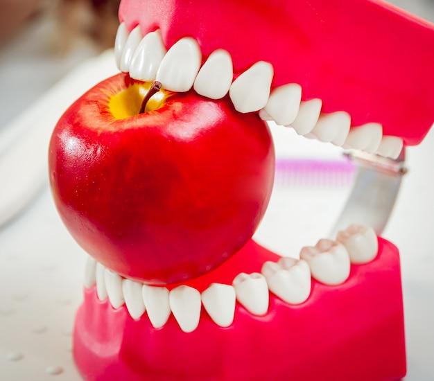 Protesi dentarie che mordono una mela.
