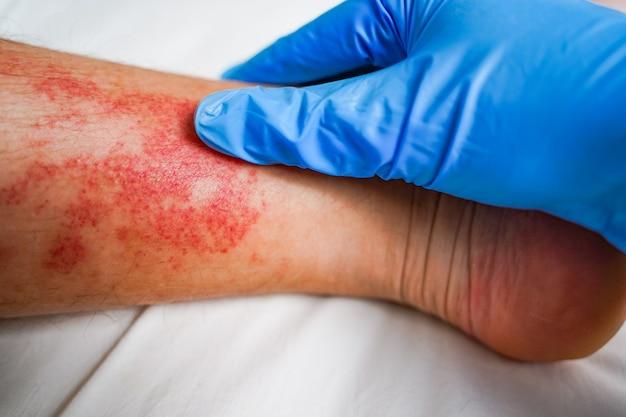 Malattia della pelle delle gambe eruzioni cutanee e macchie rosse pruriginose