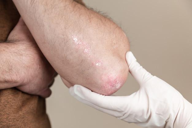 Il medico esamina la psoriasi. il medico esamina la pelle del paziente. mani in guanti medicali che palpano la pelle con eruzione cutanea rossa. esame da parte del dermatologo, problema di salute e allergia.