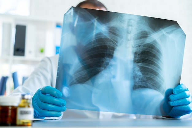 Medico che esamina la scansione a raggi x dei polmoni nel suo ufficio in ospedale si chiuda