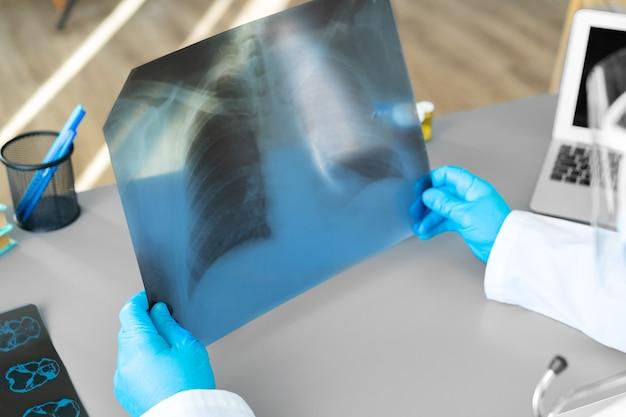 Medico che esamina la scansione a raggi x dei polmoni nel suo ufficio in ospedale