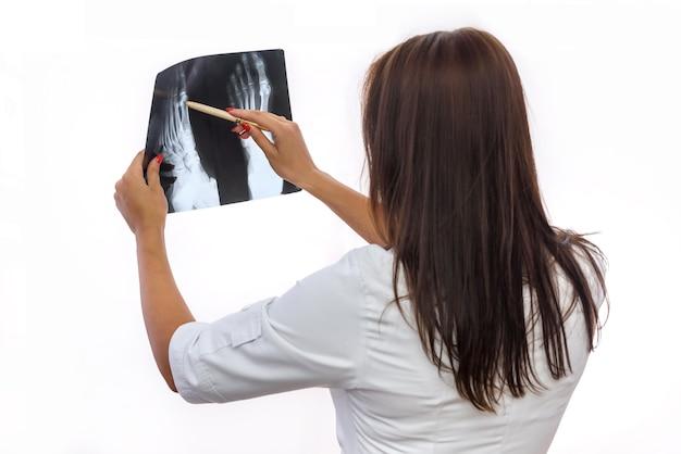 Medico che esamina i raggi x del piede del paziente isolati su bianco. bella donna in uniforme medica