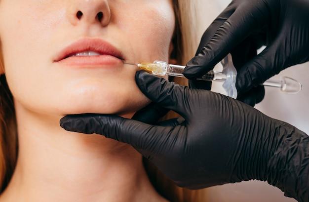Medico in guanti che fa iniezioni di donna nelle labbra