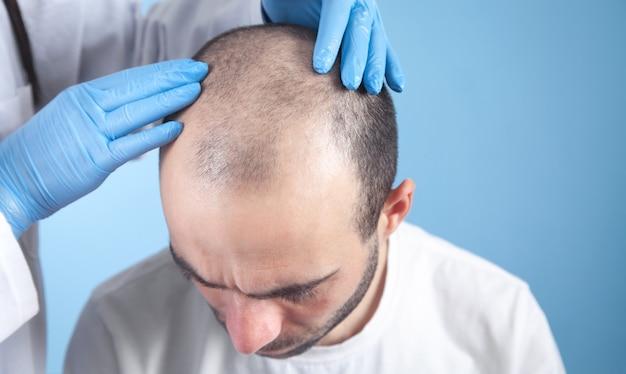 Mani del medico sulla testa del paziente. crescita dei capelli