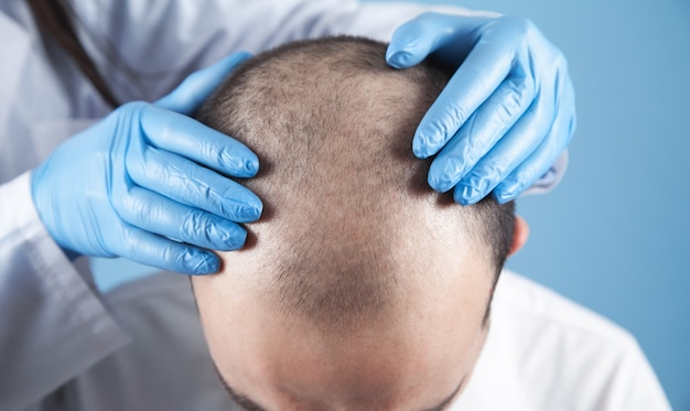 Mani del medico sulla testa del paziente