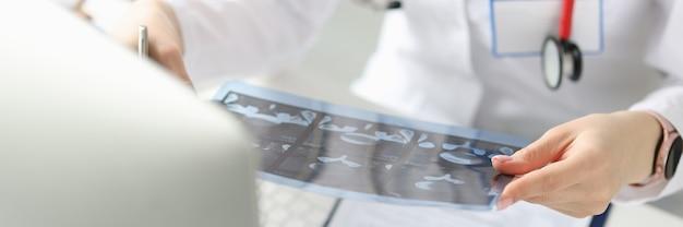 Il dottore tiene in mano un'immagine a raggi x del paziente