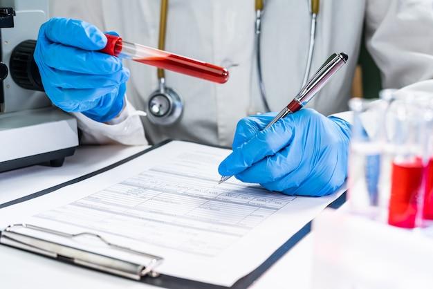 Un medico in un laboratorio detiene una provetta con un esame del sangue dei pazienti. concetto: analisi del sangue per infezione o parametri biochimici.
