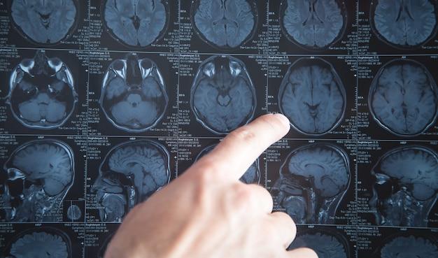 Medico che indica all'immagine dei raggi x della testa.
