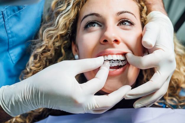 Medico che mette un allineatore dentale chiaro per la donna paziente