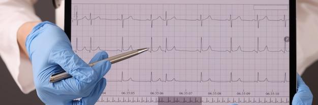 Medico in guanti di gomma che tengono compressa digitale con il primo piano del cardiogramma. diagnosi di elettrocardiogramma del concetto di disturbi del ritmo