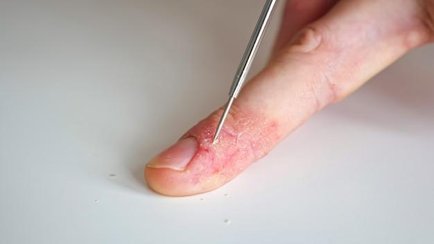 Il dottore prende un raschiamento della pelle per l'analisi. dita maschili con psoriasi ed eczema, primo piano.