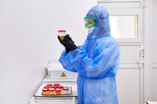 Medico o tecnico alla ricerca di un campione di urina in bottiglia preparato per l'esame delle urine con il microscopio