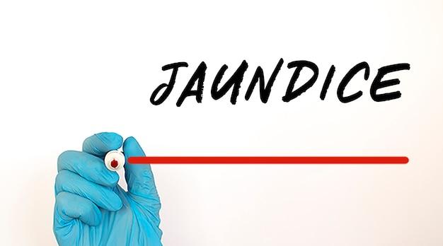 Medico che scrive il testo jaundice con un pennarello rosso. concetto medico.