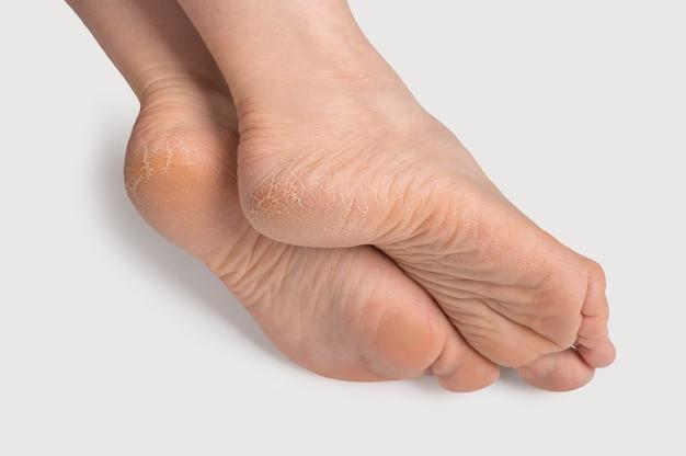 Suole dei piedi secche e screpolate. gambe femminili, piedi, piedi in una posizione elegante pelle secca su talloni e suole