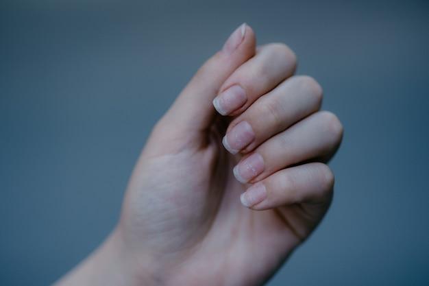 Unghie secche e danneggiate. unghie lunghe e cuticole in cattive condizioni. lo smalto gel è caduto.