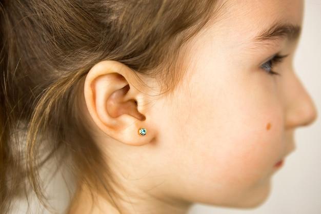 Piercing all'orecchio in un bambino - una ragazza mostra un orecchino all'orecchio fatto di una lega medica. sfondo bianco, ritratto di una ragazza con un neo sulla guancia di profilo.