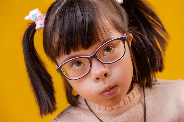 Mangiare porridge mattutino. insolito bambino grazioso con i capelli corti e gli occhi a mandorla a causa di anomalie cromosomiche