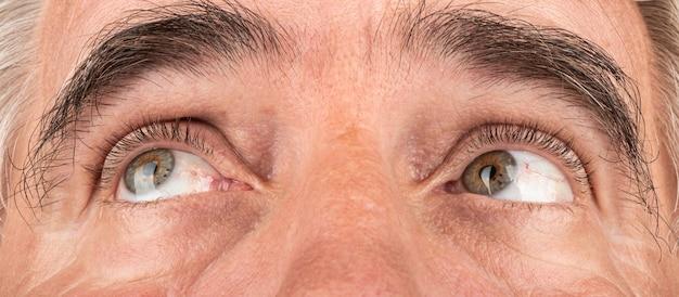 Occhi delle persone anziane vista assottigliamento della cornea cheratocono