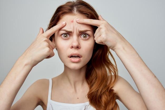 Donna emotiva brufoli sui problemi della pelle di insoddisfazione dermatologia sulla fronte