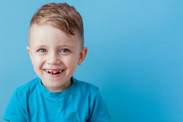 Ampia carie dentale precoce e denti incisivi disallineati e di riserva nella mascella superiore