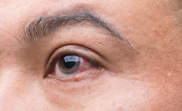 Concetto di irritazione oculare: macro occhi rossi dell'uomo, congiuntivite oculare o dopo aver preso polvere