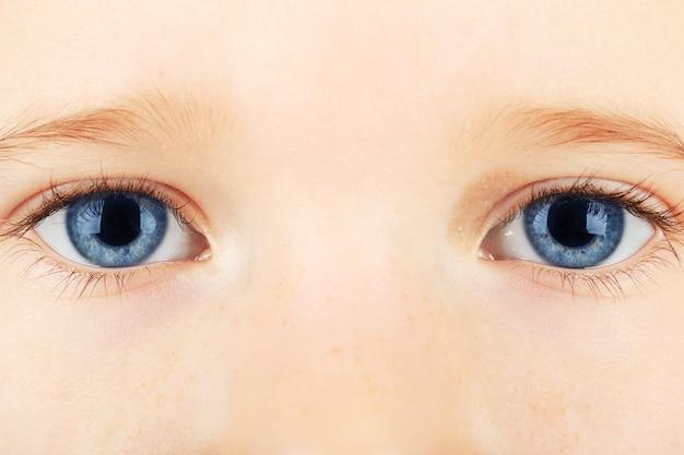 Una bambina di quattro anni con gli occhi