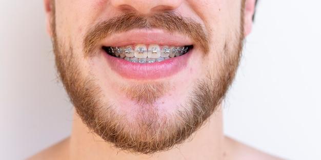 Volto di uomo con baffi e barba che utilizza un apparecchio ortodontico per la correzione dei denti