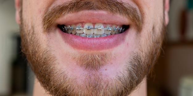 Volto di uomo con baffi e barba che indossa apparecchio ortodontico