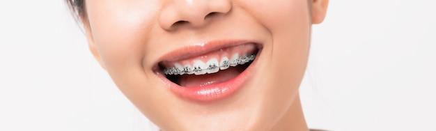 Volto di una giovane donna asiatica sorridente con le parentesi graffe sui denti