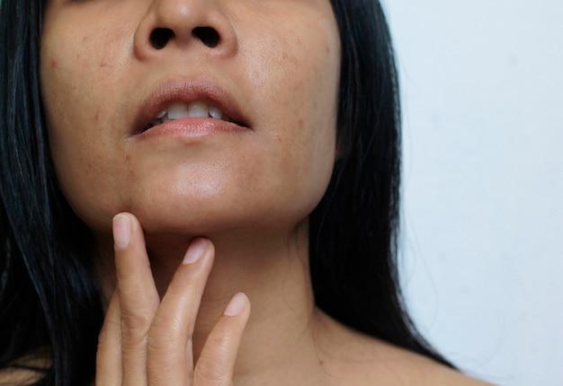 Il volto di una giovane donna con macchie scure e rughe da acne.