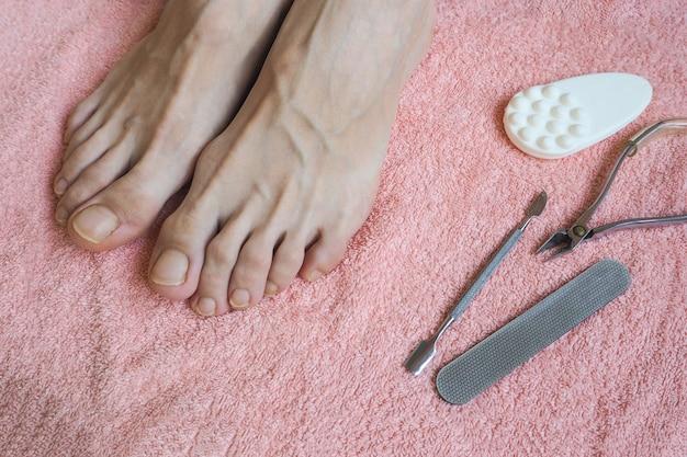 Piedi prima del trattamento pedicure. il concetto di pedicure.