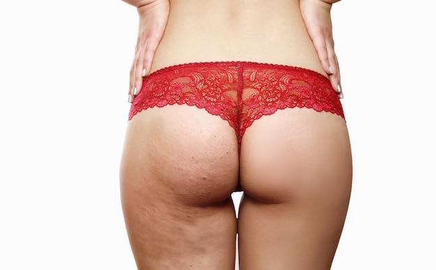 Natiche femminili con cellulite prima e dopo su uno sfondo bianco, perizoma rosso, dopo una procedura medica