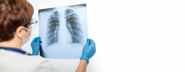 Una dottoressa esamina una radiografia del polmone di un paziente infetto da covid-19 coronavirus, polmonite. raggi x di luce. fluorography. controllo dei polmoni in ospedale. radiografia reale dei polmoni umani