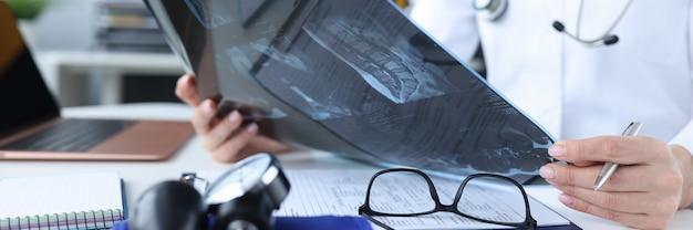 Medico femminile che tiene i raggi x nelle sue mani nel concetto dell'esame di radiazione del primo piano della clinica