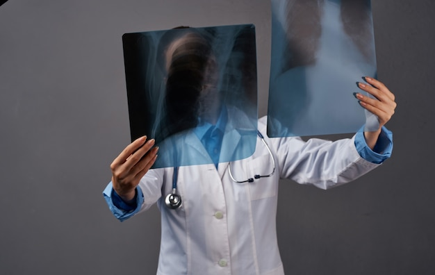 Diagnosi di medicina medico femminile mediante esame a raggi x