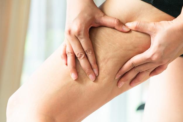 La mano femminile tiene la cellulite grassa e la smagliatura sulla gamba