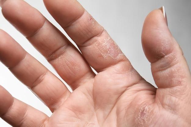 Mano femminile con dermatite, primo piano