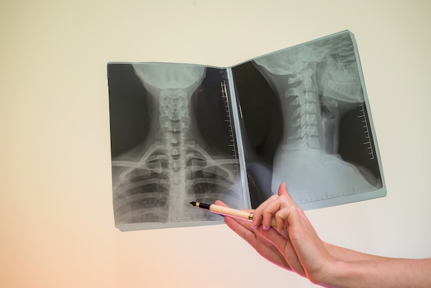 Mani femminili con raggi x scheletro puntando su di esso si chiudono
