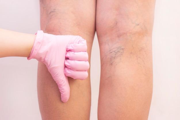Gambe femminili con vene varicose.