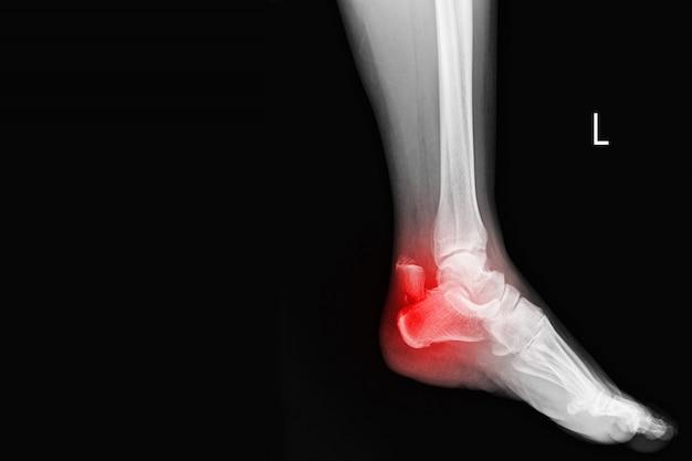 Pellicola radiografia a raggi x alla caviglia che mostra l'osso del tallone rotto sul segno rosso. tecnologia medica e concetto di assistenza sanitaria.