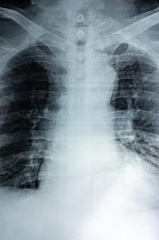 Pellicola radiografica del seno di una persona, stile grana del film