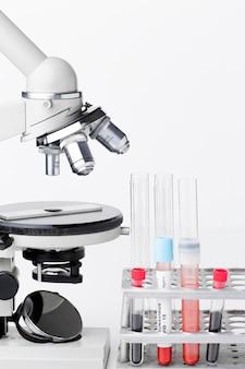 Vista frontale dei campioni di sangue per il test covid-19