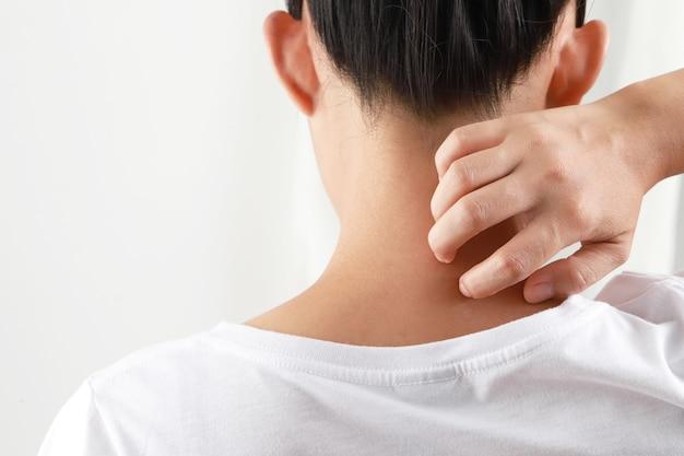 Ragazza che prude sulla pelle e si gratta reazione allergica pruriginosa alle punture di insetti dermatite, cibo, medicine, dermatite atopica e dermatite