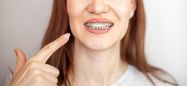La ragazza punta il dito contro i denti bianchi e uniformi con le parentesi graffe. raddrizzare i denti con l'apparecchio. cure odontoiatriche.