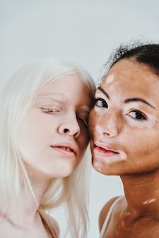 Gruppo di donne multietniche con diversi tipi di pelle che posano insieme in studio concetto sul corpo ...