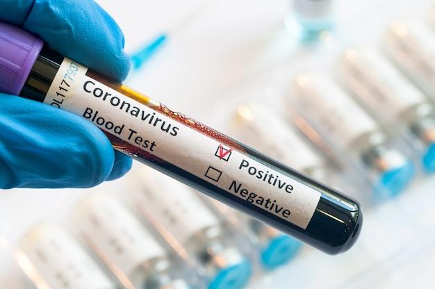 Mano che tiene il test di campioni di sangue dei pazienti per l'epidemia di coronavirus covid in laboratorio nuovo coronavirus ncov