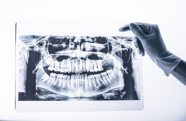 Mano in guanto bianco che tiene i raggi x dentali della bocca su fondo bianco