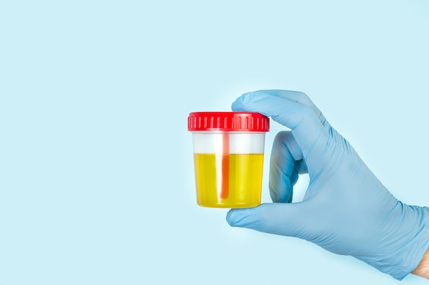 Mano con guanto chirurgico che tiene una tazza medica usa e getta per l'analisi delle urine