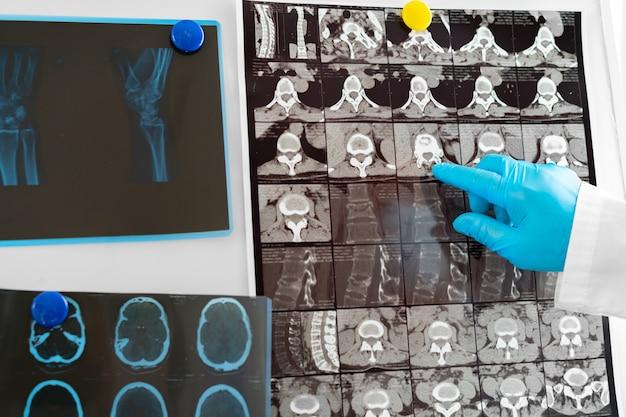 Le mani di un medico che tiene la testa di risonanza magnetica si chiudono
