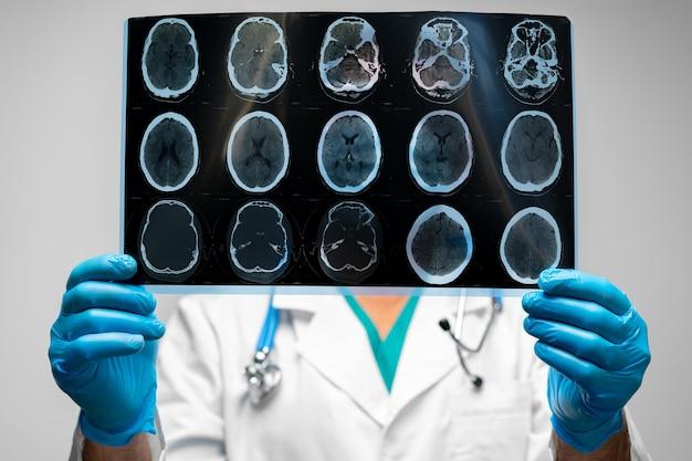Mani di un medico che tiene la risonanza magnetica testa